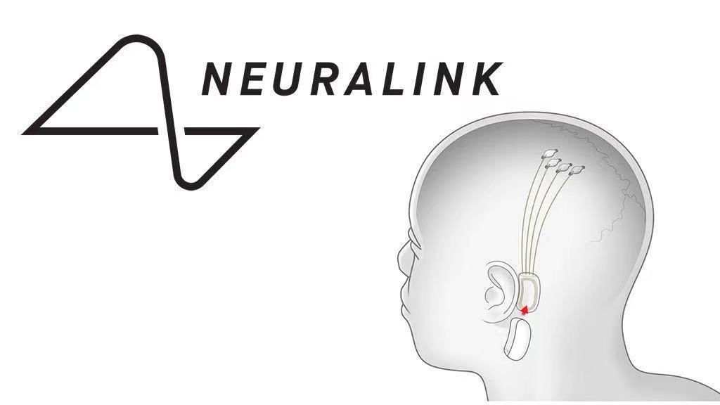 马斯克旗下公司Neuralink在奥斯汀扩招,意在奥斯汀持续扩张!
